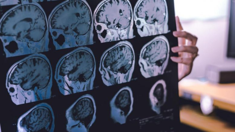 Covid-19 vaccine from Pfizer confirmed to cause brain damage, neurodegenerative disease