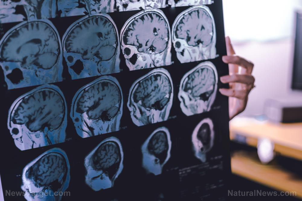 Image: Covid-19 vaccine from Pfizer confirmed to cause brain damage, neurodegenerative disease