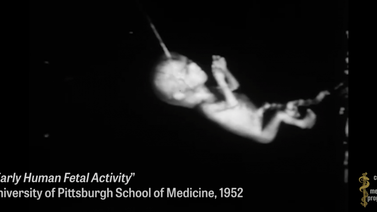 """UC San Francisco engaging in horrifying experiments, organ harvesting of live babies in the name of """"science"""""""