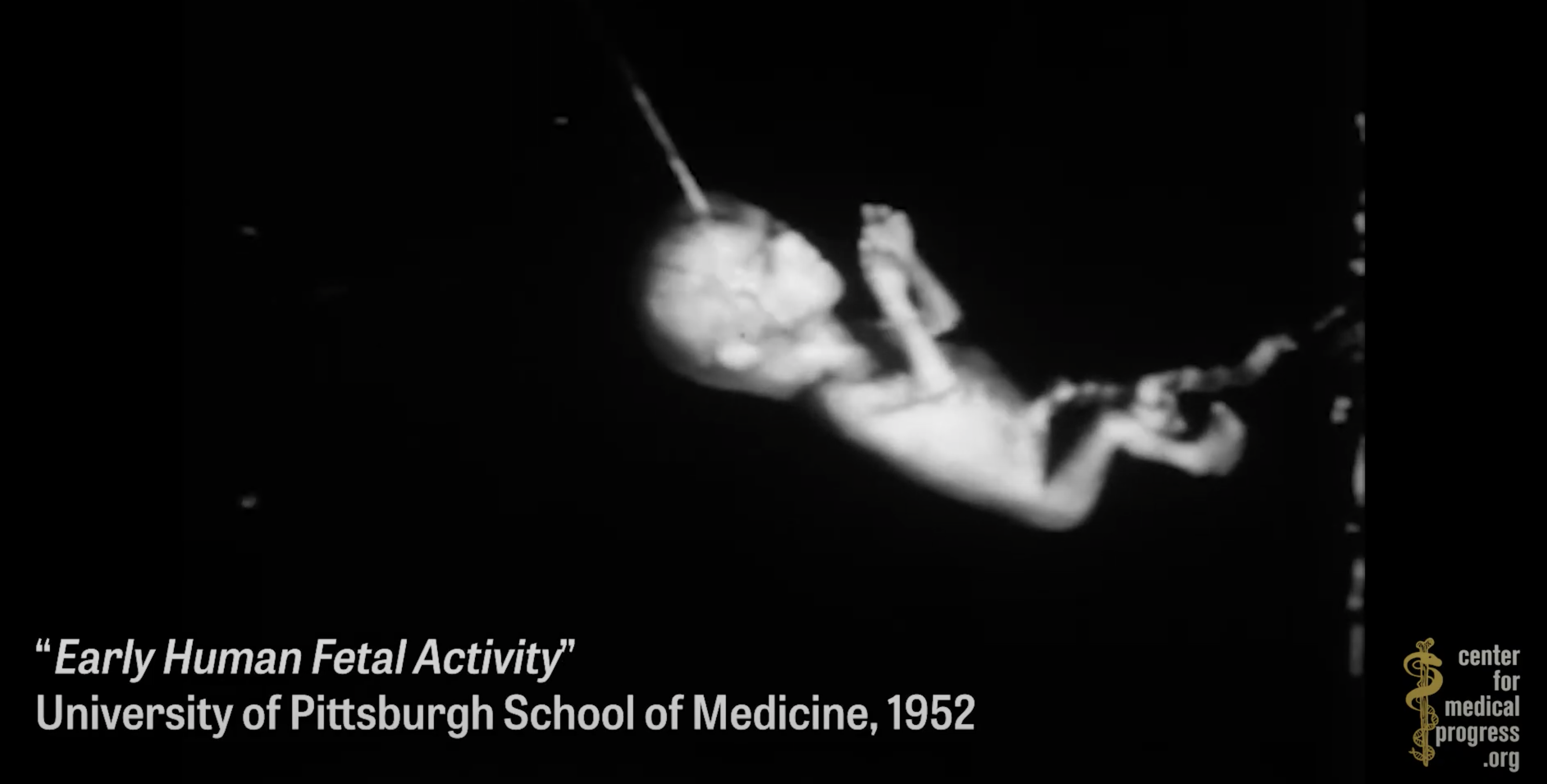"""Image: UC San Francisco engaging in horrifying experiments, organ harvesting of live babies in the name of """"science"""""""